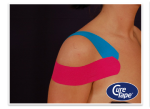 schoudertape medical taping