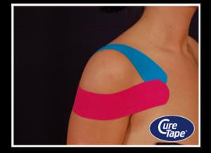 schoudertape medical taping